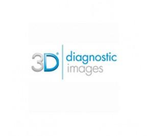 3D profilo